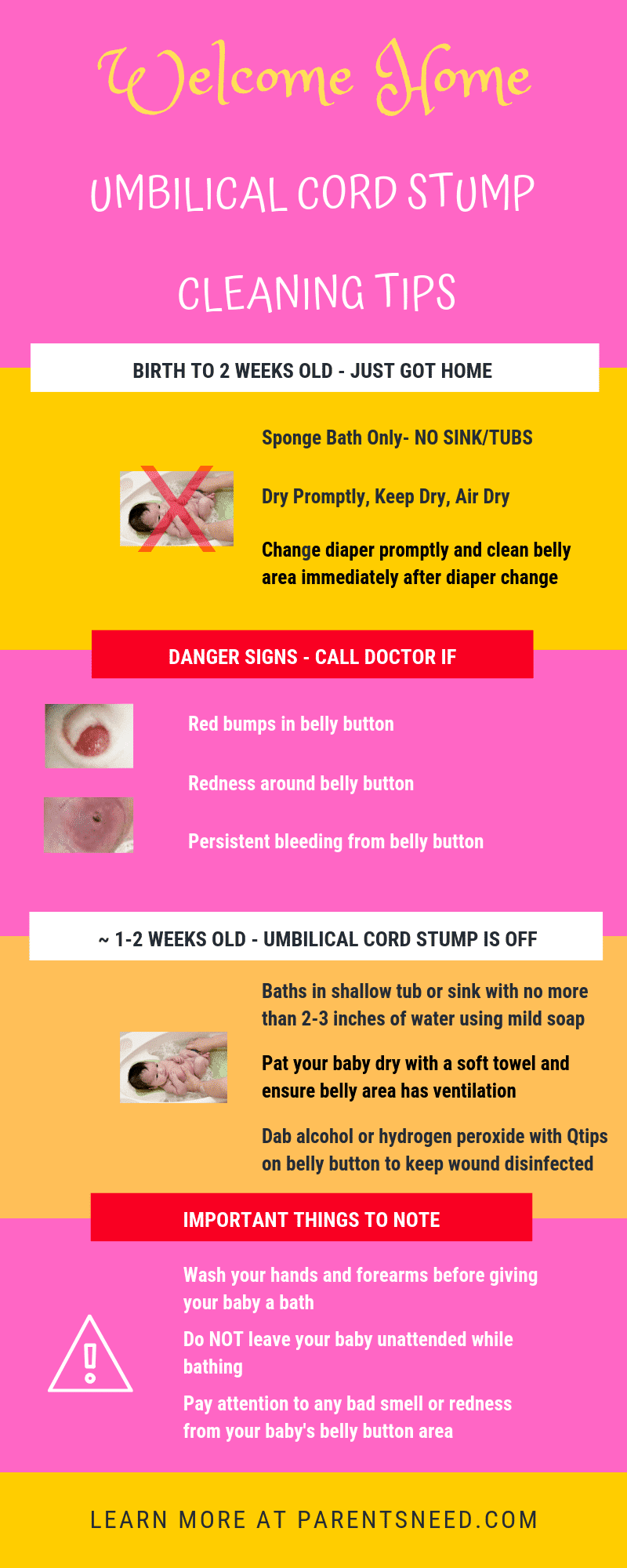 infographic tips to care for baby's umbilical cord stump after it comes off